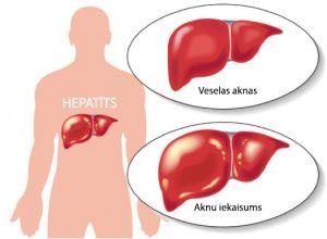 No 1. līdz 10. novembrim Daugavpils reģionālā slimnīca piedāvā bezmaksas aknu izmeklējumus  B un C hepatīta pacientiem